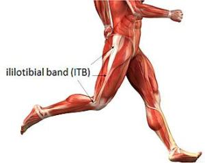 treatment-for-it-band-syndrome-runners-knee-L-oLs4Pm, Therapy and Training in Beverly Hills, CA - Beverly Hills Posture offers Chiropractic Care, yoga, Acupunture, and Massage Therapy, Walker Ozar - Doctor of Chiropractic, Chiropractor in Beverly HIlls California